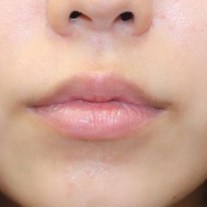 『プレミアム口角挙上術』で、優しい可愛い唇に