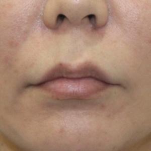 『口角挙上術』 おちょぼ口を改善、綺麗な唇に
