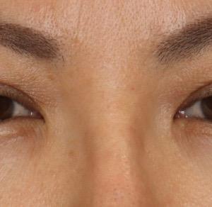 『目の上のたるみ&目の開きにくさ』を改善 目元を綺麗にお若く