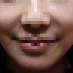 『脂肪吸引(頬)』 頬の膨らみを改善 シュッとしたフェイスラインに(小顔にもなりました)