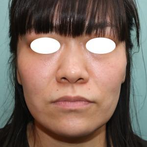 『美人に見える忘れ鼻』を形成 (鼻尖縮小術、鼻尖形成術(耳介軟骨移植)、鼻プロテーゼ)