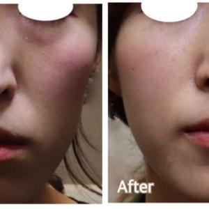 シワやタルミを内部から修復 『プレミアムPRP皮膚再生療法』