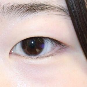 『二重全切開(+眼窩脂肪除去)』&『目頭切開』 まぶたをスッキリと綺麗な二重に、そして目を大きく