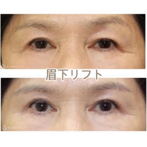 『眉下リフト』 綺麗な目元に (1か月後)