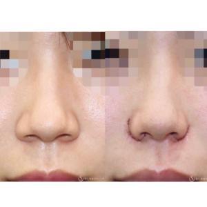"""『小鼻縮小術』""""Rotation & Advance"""" 鼻の穴を自然にスッキリ(手術直後)"""