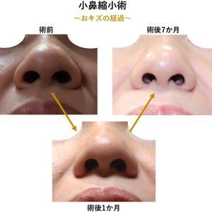 『小鼻縮小術』のおキズの経過