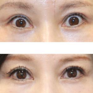 『他院様の眼瞼下垂症手術による過矯正』を修正