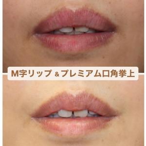 『M字リップ(リップ縮小術)』&『プレミアム口角挙上術』 幸せそうな可愛らしい唇に