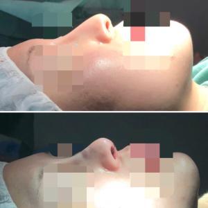 お鼻を高く細く・ちょっとアップノーズに! 『他院鼻中隔延長後の修正手術』(直後)