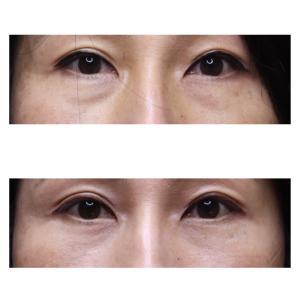 『経結膜下脱脂術』 目の下のクマ・膨らみをスッキリ(50代女性・術後3ヶ月)