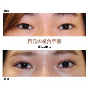 『目元の複合手術』 綺麗な平行型二重に (術後6ヶ月)