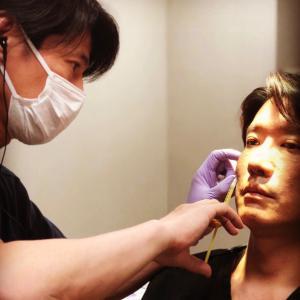 『プレミアムPRP皮膚再生療法』 7年ぶりに院長が...
