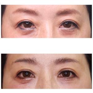 『眉下リフト × 目上切開』 若々しく華やかな平行型二重に (術後1ヶ月)