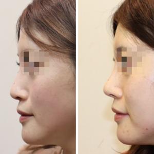 『他院鼻中隔延長後の修正手術』 お鼻を高く・綺麗なアップノーズに! (術後4ヶ月)