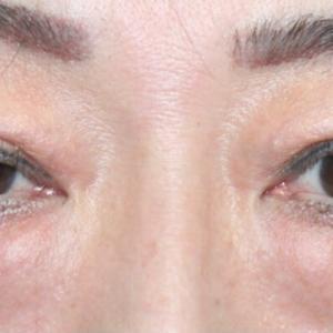 『目元複合手術』 眉下リフト+眼瞼下垂症手術+経結膜下脱脂術  (術後4ヶ月)