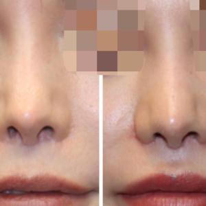 『鼻翼挙上術』 下に引っ張られた鼻翼を挙上(術後1ヶ月)