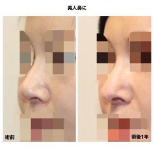 他院修正 『鼻中隔延長術』で美人鼻に (術後1年)