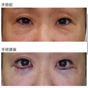 『下眼瞼除皺術(+脱脂)』 目の下のシワ(タルミ) & つり目 を改善