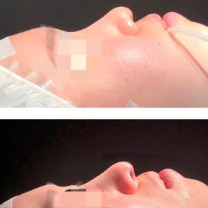 『鼻中隔延長術』 鼻尖形成後の修正→お鼻を綺麗に! (手術直後)