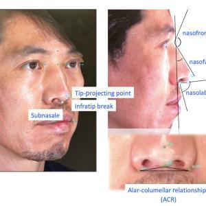 『鼻中隔延長術+鼻尖形成+プロテーゼ』の全方向と詳細の紹介です。(手術直後)
