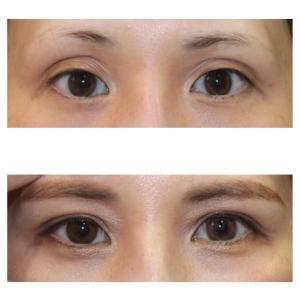 『眼瞼下垂症手術』 凹んだ目元を綺麗な二重に (術後2ヶ月)