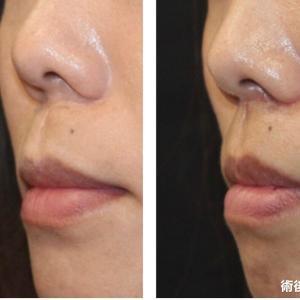 『リップリフト』 鼻の形も考慮し人中を短縮 (術後1ヶ月)