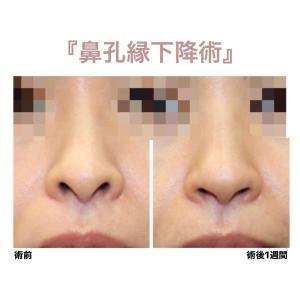 『鼻孔縁下降術』目立つ鼻の穴をスッキリ(術後1週間)