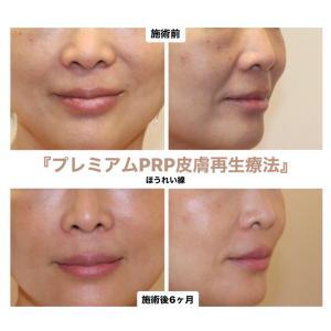 『プレミアムPRP皮膚再生療法』 ほうれい線をスッキリ♡(50代女性)