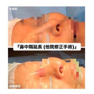 『他院修正手術:鼻中隔延長術など』  美人鼻に♡(手術直後)