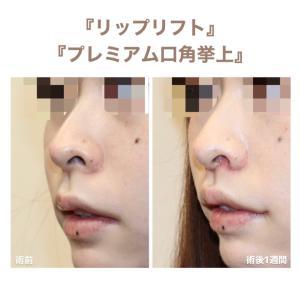 『リップリフト』  鼻の変形なく、人中を綺麗に短く   (術後1週間)