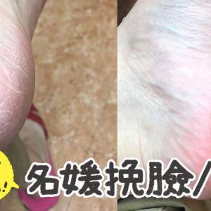台北で足裏角質取りを初体験!