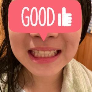 我が子の悩み…小児歯科矯正について⑩