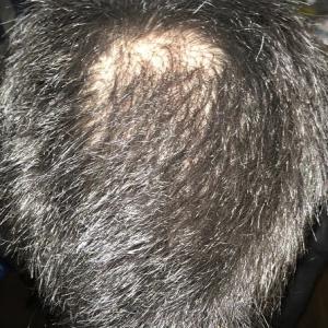 2020年1月の頭皮状況を報告