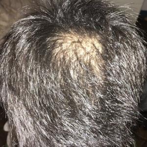 2020年2月の頭皮状況を報告