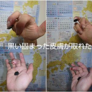 凍傷経過報告その3(9月7日)