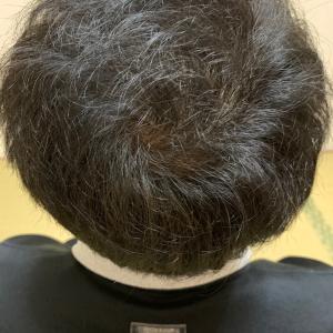植毛から2ヶ月