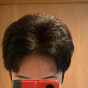 韓国植毛から一年以上経過!