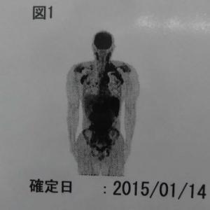 【悪性リンパ腫】夫の抗がん剤治療について