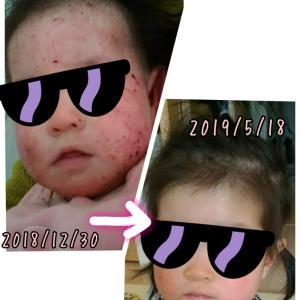 乳児湿疹を乗り越えた私の、アルコール消毒に対する考え方