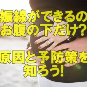 妊娠線ができるのはお腹の下だけ?原因と予防策を知ろう!