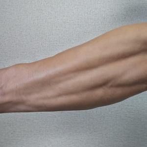 重いダンベルカールからを始めてからの尺骨(しゃっこつ)/前腕の痛み