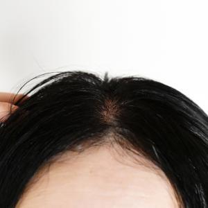 頭が痒い!乾燥から起こるフケと抜け毛の対策