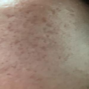 【画像あり】漏斗胸と顔のクレーター、瘢痕に悩まされています。
