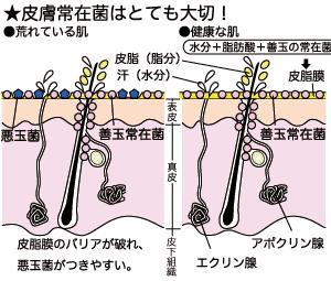 『有用皮膚常在菌』を皮膚に移植する治療は? ~米国のアレルギー・感染研究所~