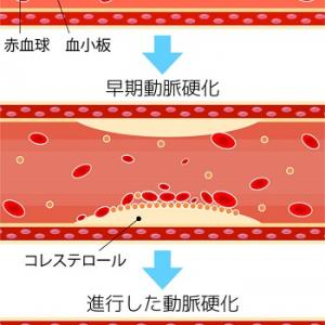 コレステ生活の効果を検証!健康診断で悪玉コレステロールにお悩みの方へ