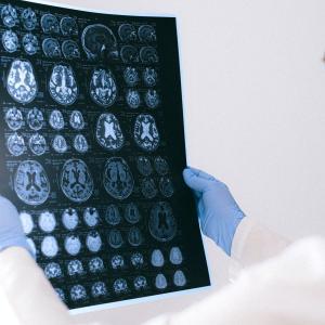 虚血性脳卒中および一過性脳虚血発作後の二次予防における降圧剤の効果はどのくらいですか?(SR&MA; Stroke. 2021)