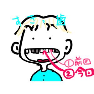2本目歯が取れた💦