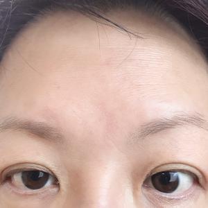 PARP阻害薬15サイクル目へ 眉毛あります
