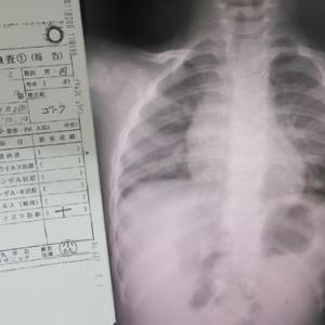 日本人の死因に「肺炎」が増えている…がんや心臓病より恐ろしい実態