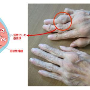 堀ちえみ リウマチによる痛みを左半身に…日によって異なる